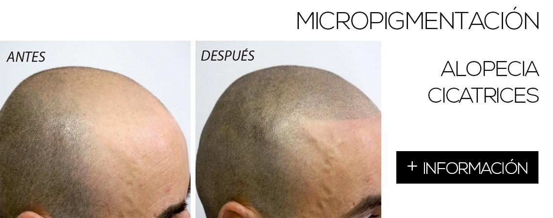 tratamientos_calvicies_cicatriz