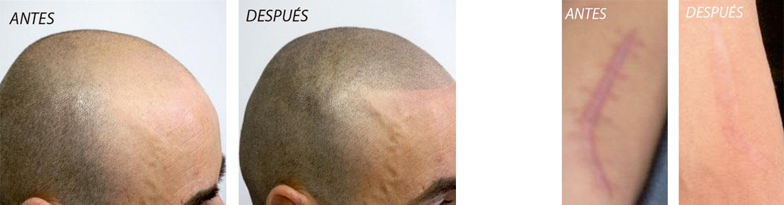tratamientos_calvicies_cicatrizes